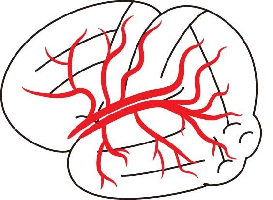 脳底動脈終末部(basilar top)
